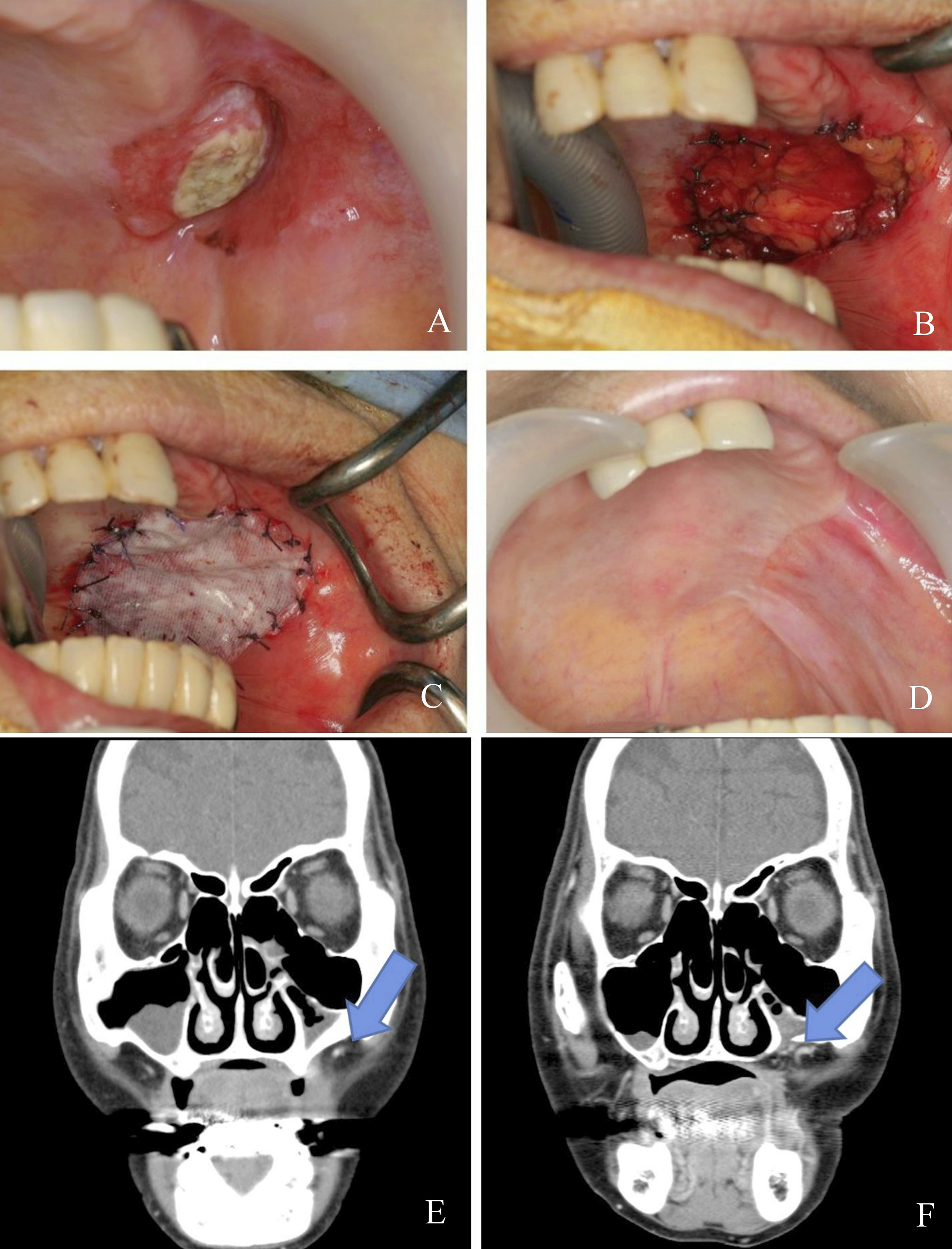 Intra oral reconstruction with buccal fat pad: Recent applications ...