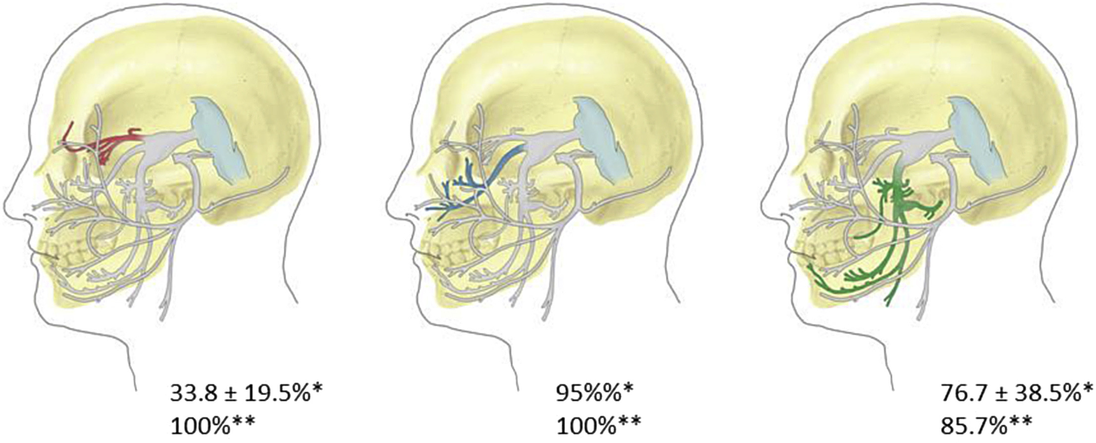 Connections between the facial and trigeminal nerves: Anatomical ...